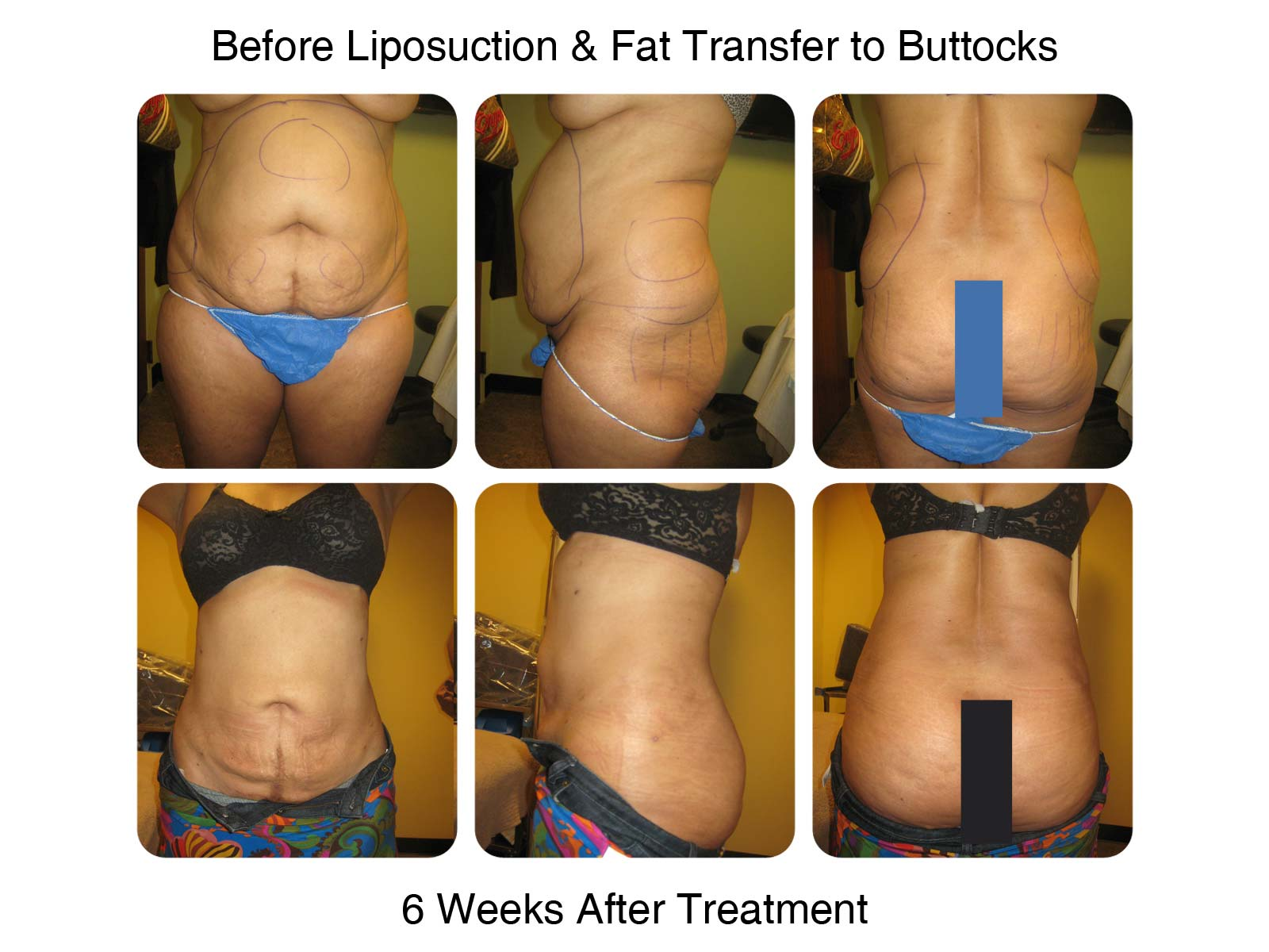 Lipo and Fat Transfer to Butt - 6 Weeks After