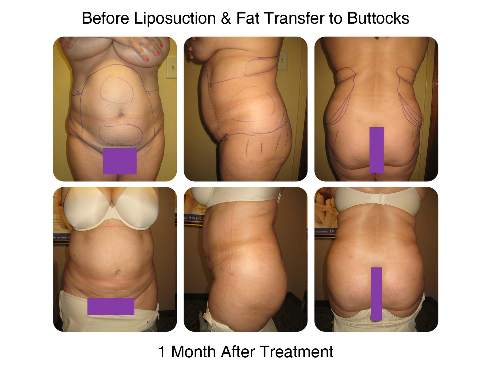 Brazilian Butt Lift Procedure - 1 Month After Treatment