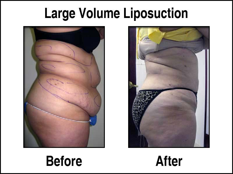 Dramatic Large Volume Liposuction Example