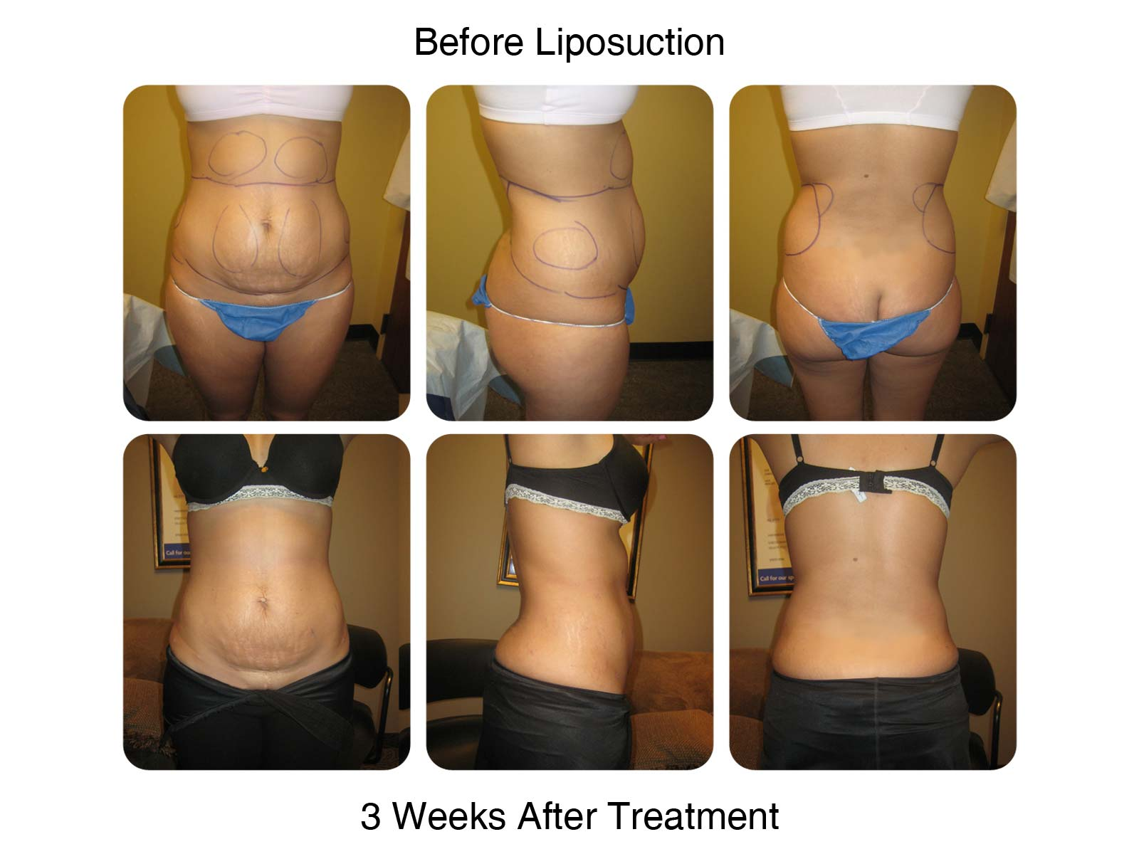 Side and Abdomen Lipo