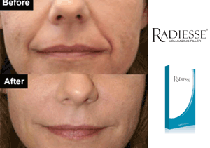 Radiesse Dermal Filler | New Radiance Cosmetic Center Of