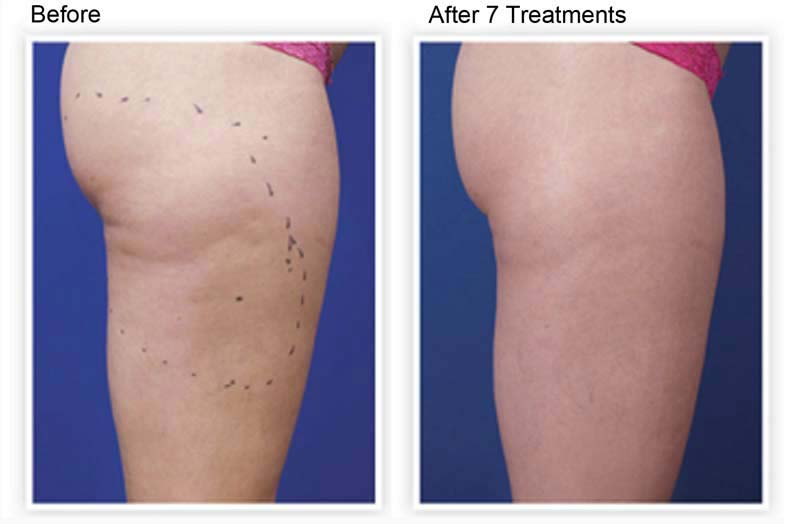 Venus Freeze for Cellulite