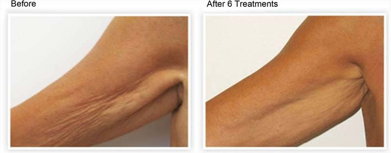 Venus Freeze Skin Tightening