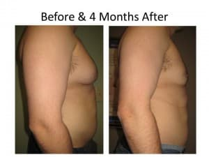 Male Breast Reduction 6