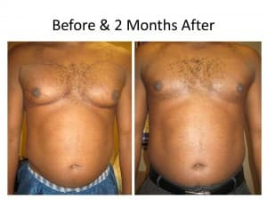 Male Breast Reduction 4