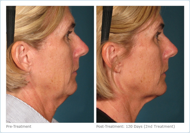 Ultherapy 4