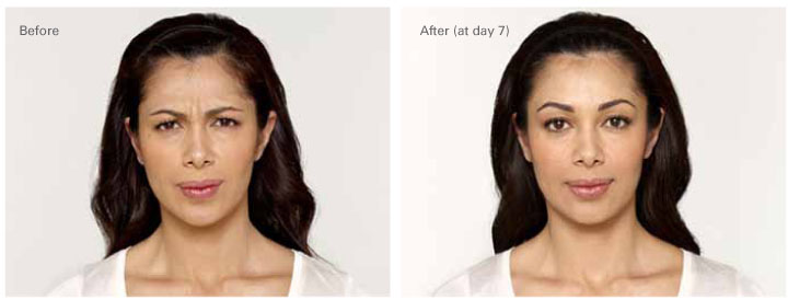 Botox Before After 3