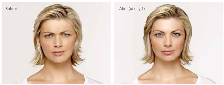 Botox Before After 4