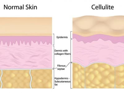 Cellulite Graphic