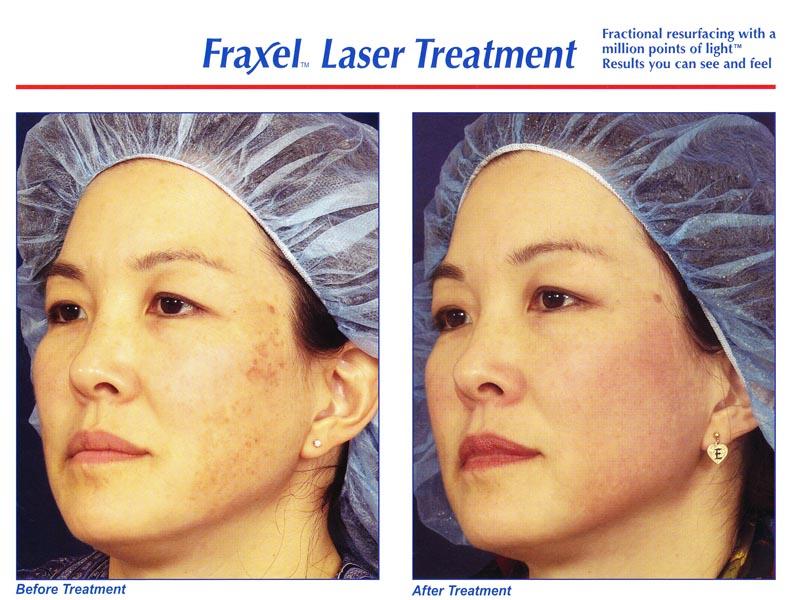 Fraxel face 8