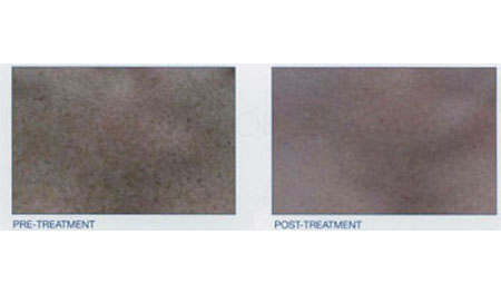 intense pulsed light - Before and After 5