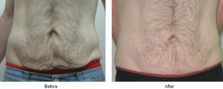 Viora Body - Before and After 5
