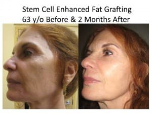 liposuction and fat transfer to face