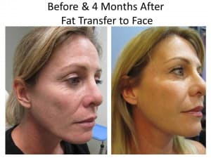 fat transfer to face after liposuction