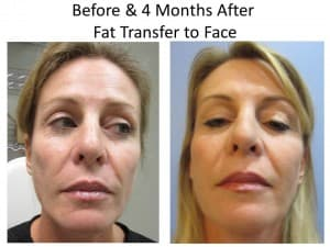 stem cell facelift photo