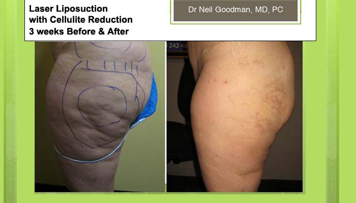 Laser Liposuction after 3 weeks