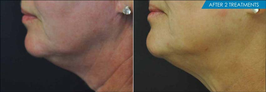 Exilis Neck before and after -4 treaments - New Radiance Cosmetic Center