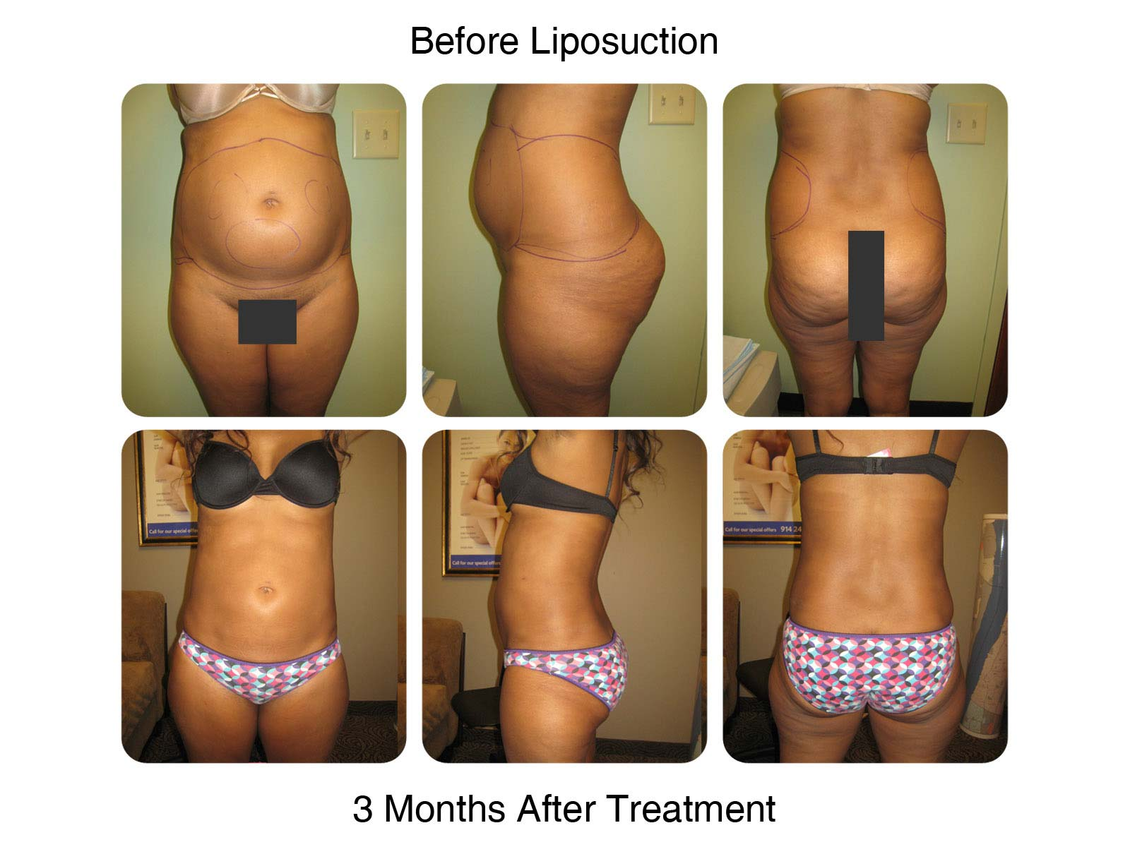 Liposuction & Fat Transfer - New Radiance of Wellington