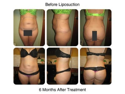 liposuction-before-and-after-13