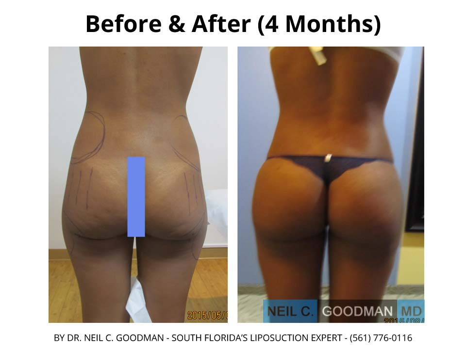 Liposuction Before and after photo 1 month