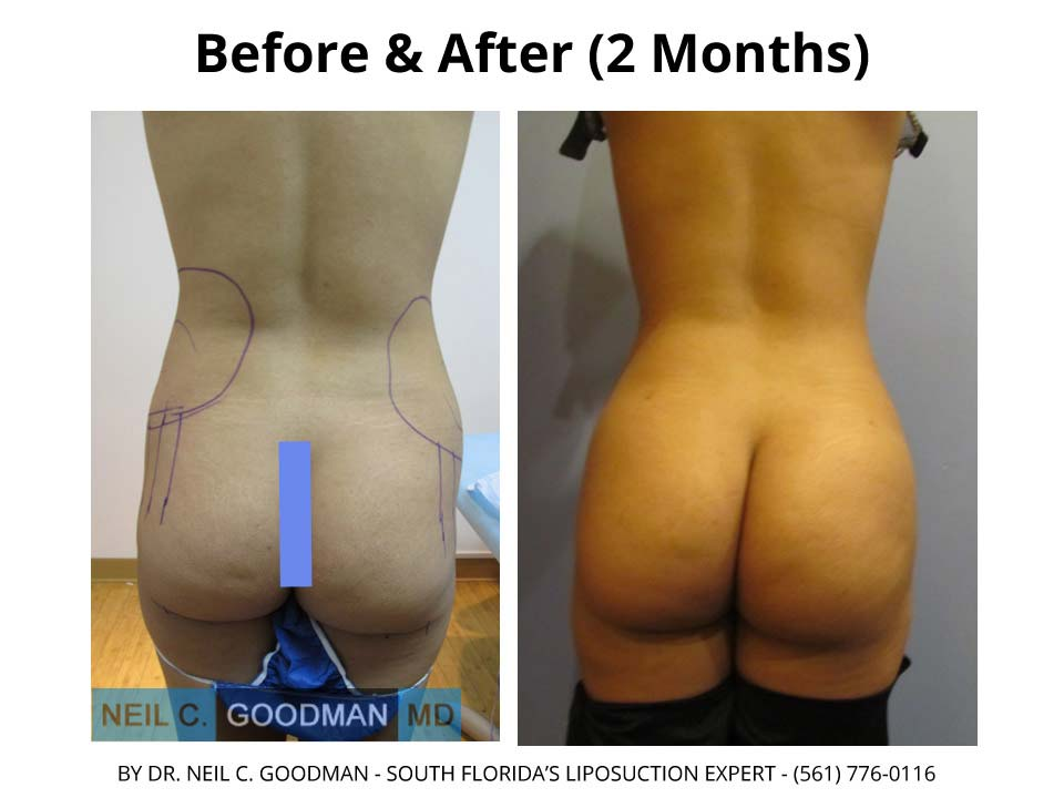 Brazilian Buttlift woman