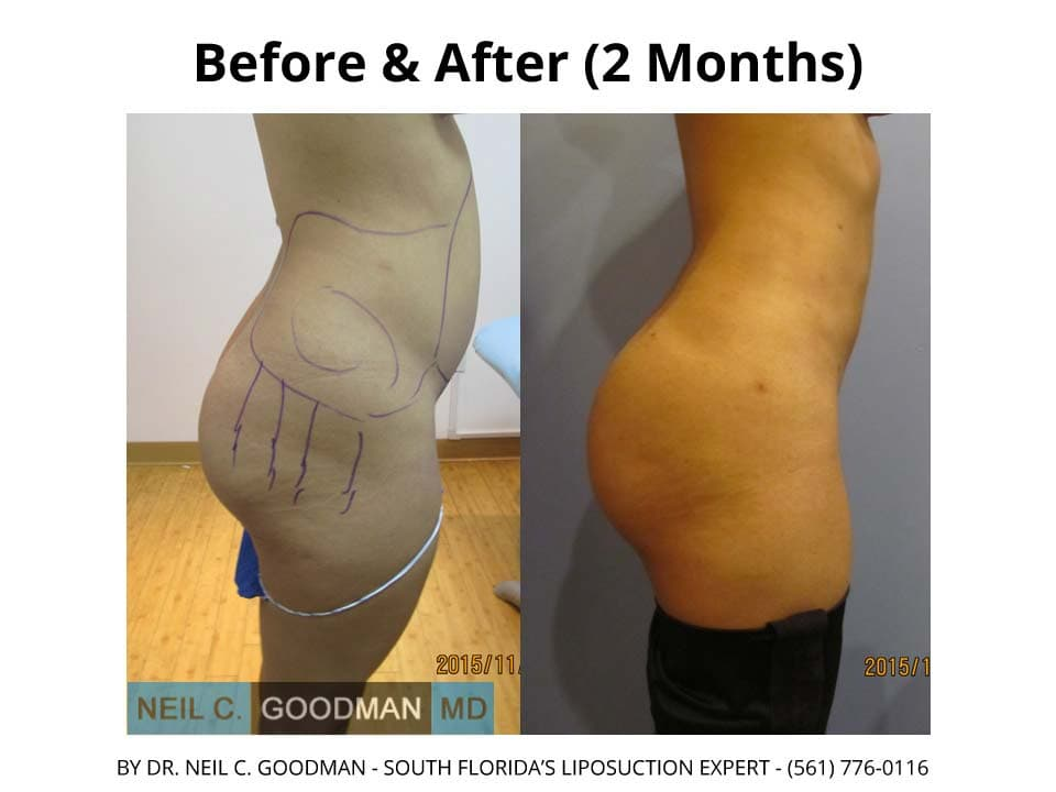 Brazilian Buttlift Results