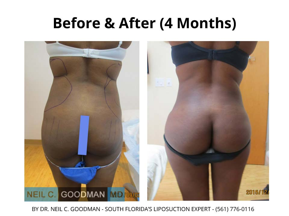 Brazilian Buttlift after 4 Months of woman