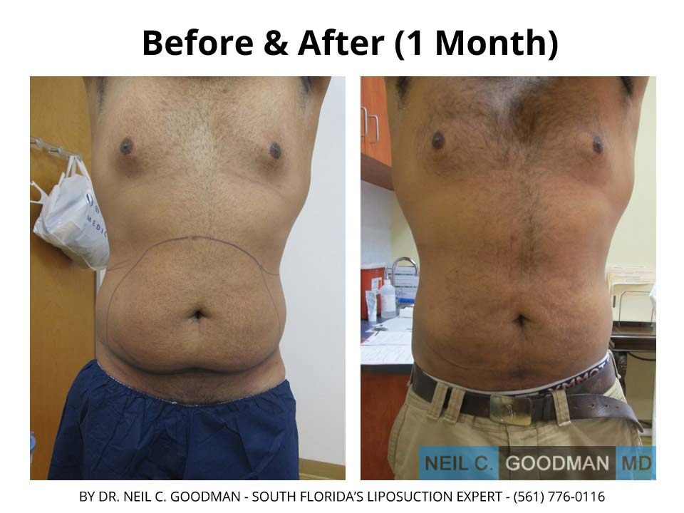 Large Volume Liposuction of Male after 1 Month