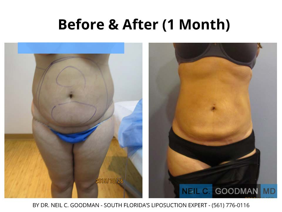 Large Volume Liposuction of woman after 1 Month