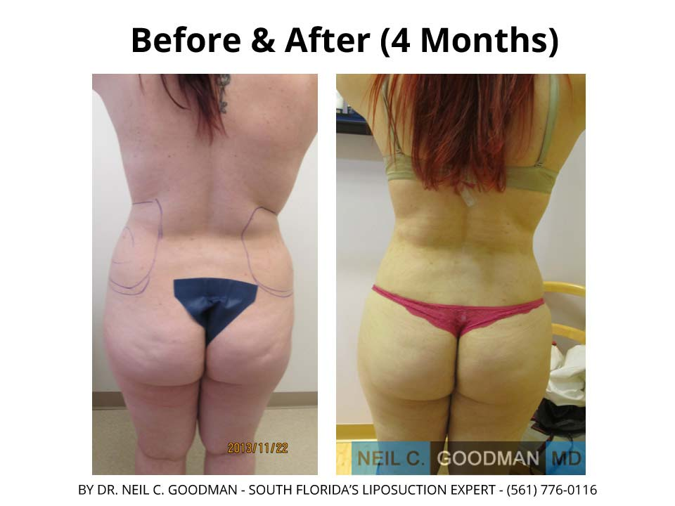 Large Volume Liposuction woman after 4 Months