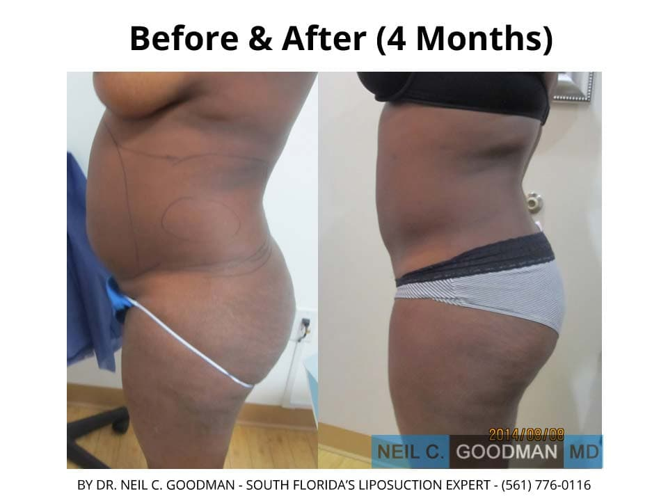 Large Volume Liposuction of woman after 4 Months