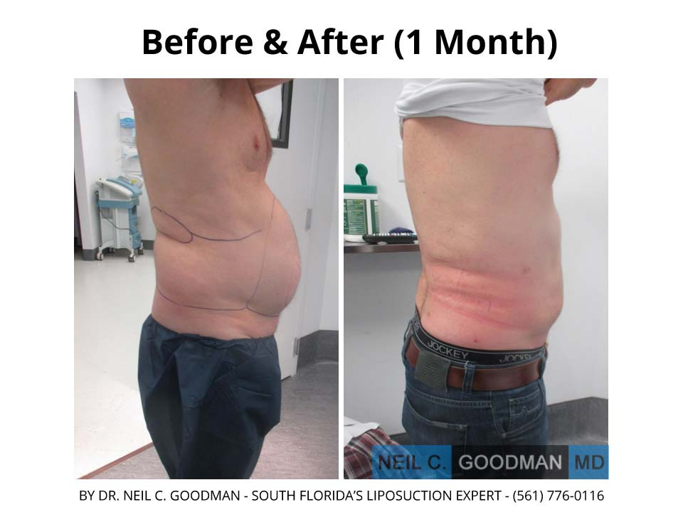 Large Volume Liposuction of Male after 1 Month result