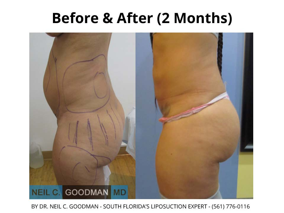 Brazilian Buttlift 2 Month
