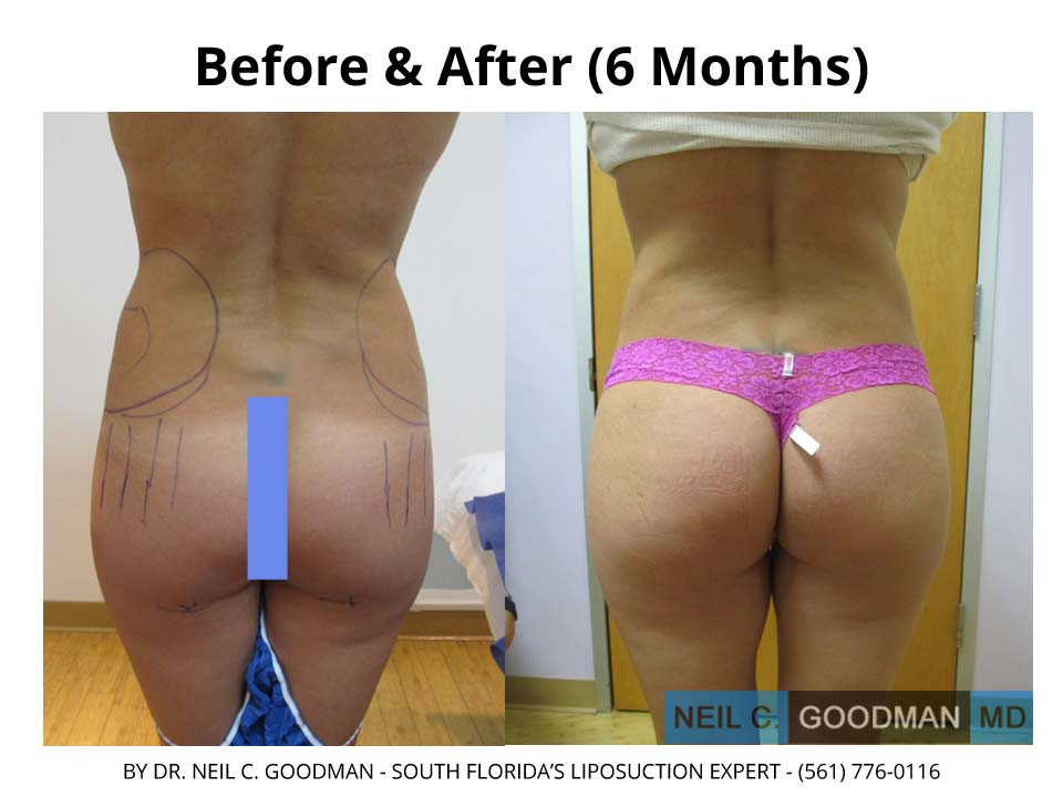 Brazilian Buttlift after 6 Months photo