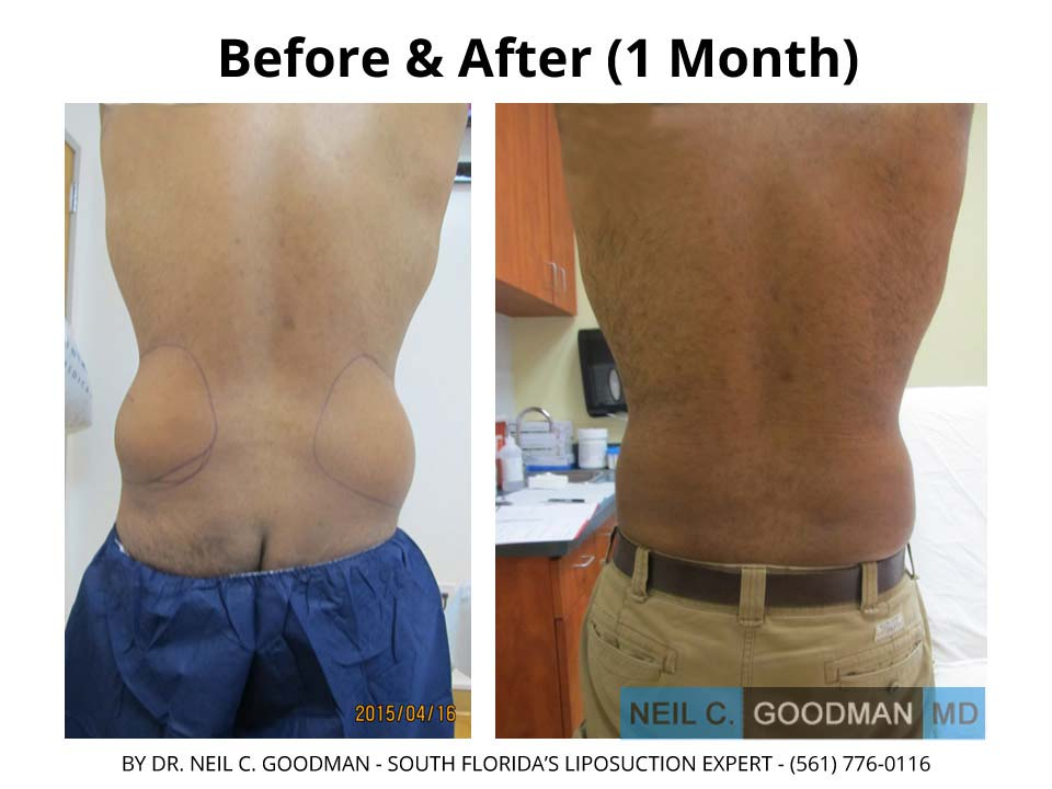 Large Volume Liposuction Male