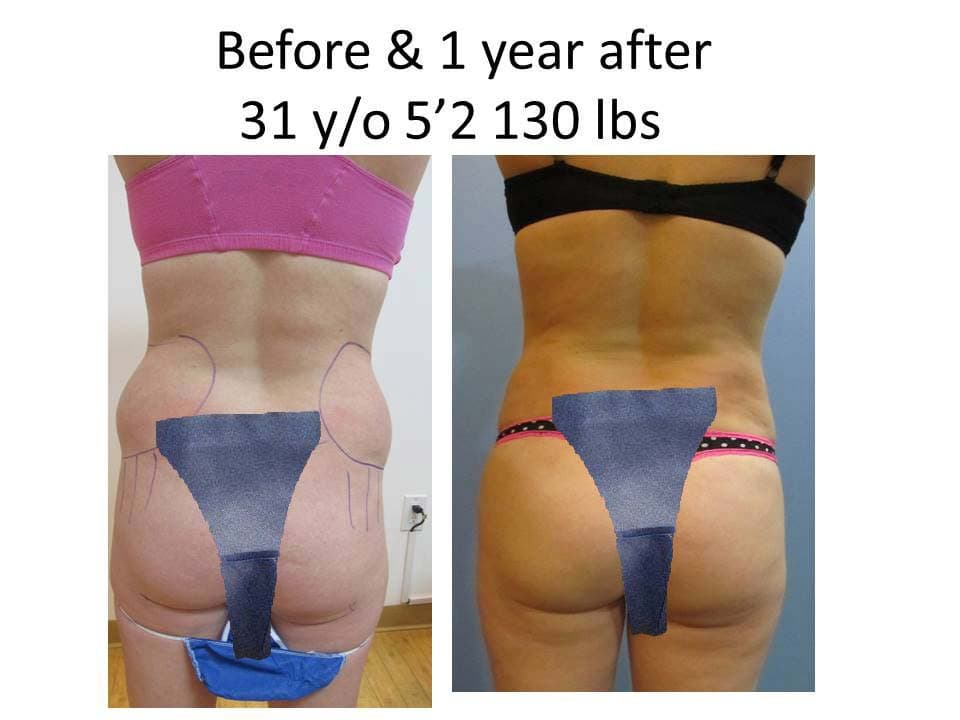 Liposuction Before and after 1 year of 31 y/o