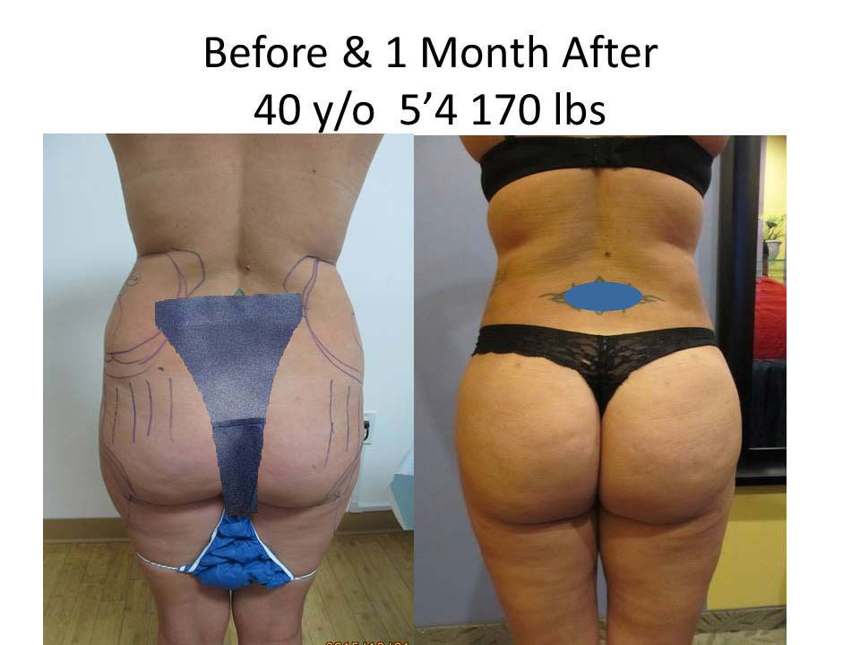 Brazilian Buttlift after 1 Year