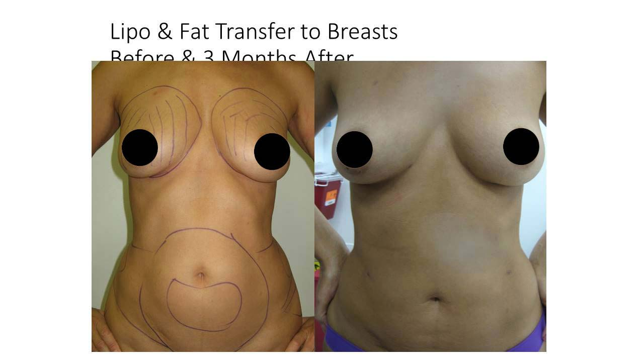 Lipo and Fat Transfer to Breasts of woman