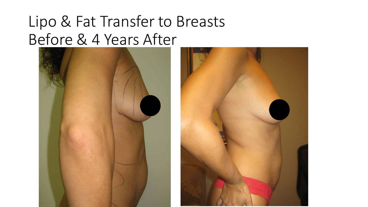 Liposuction Fat Transfer to Breasts result