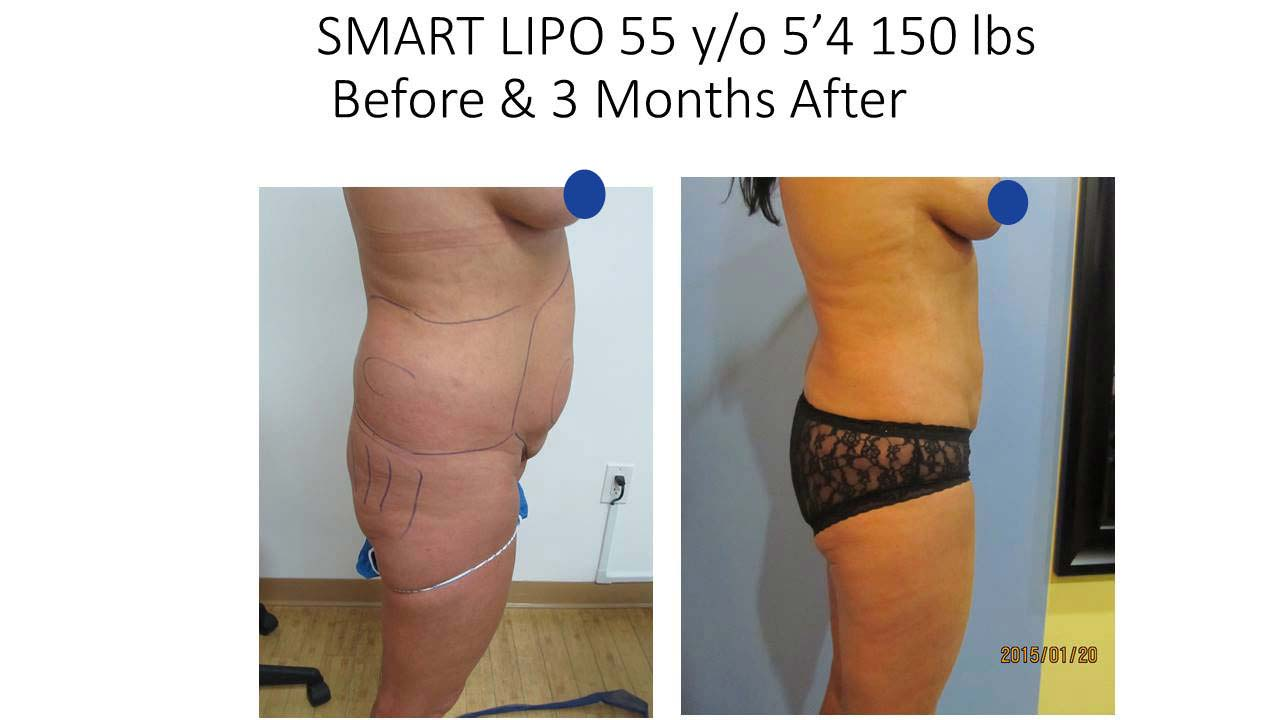 Smartlipo 55 Y/O after 3 months