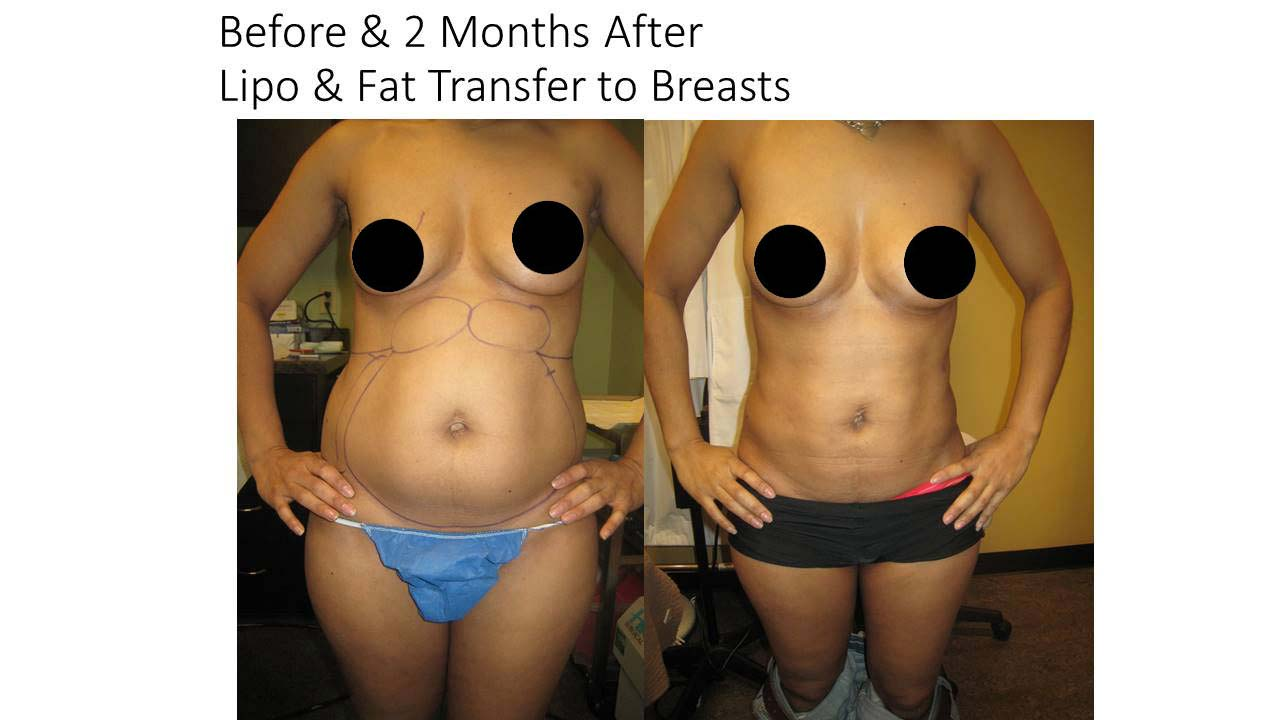 Liposuction breasts of woman results