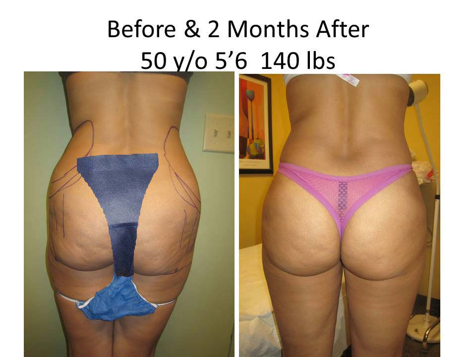 Brazilian Buttlift woman Results