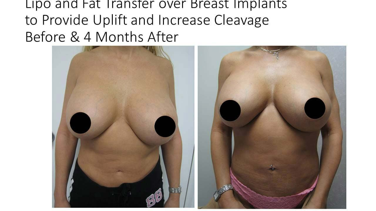 Lipo and Fat Transfer for woman Breasts
