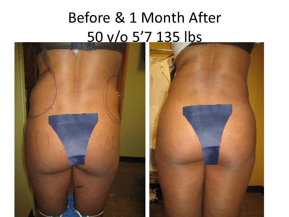Brazilian Buttlift 1 Month reuskt