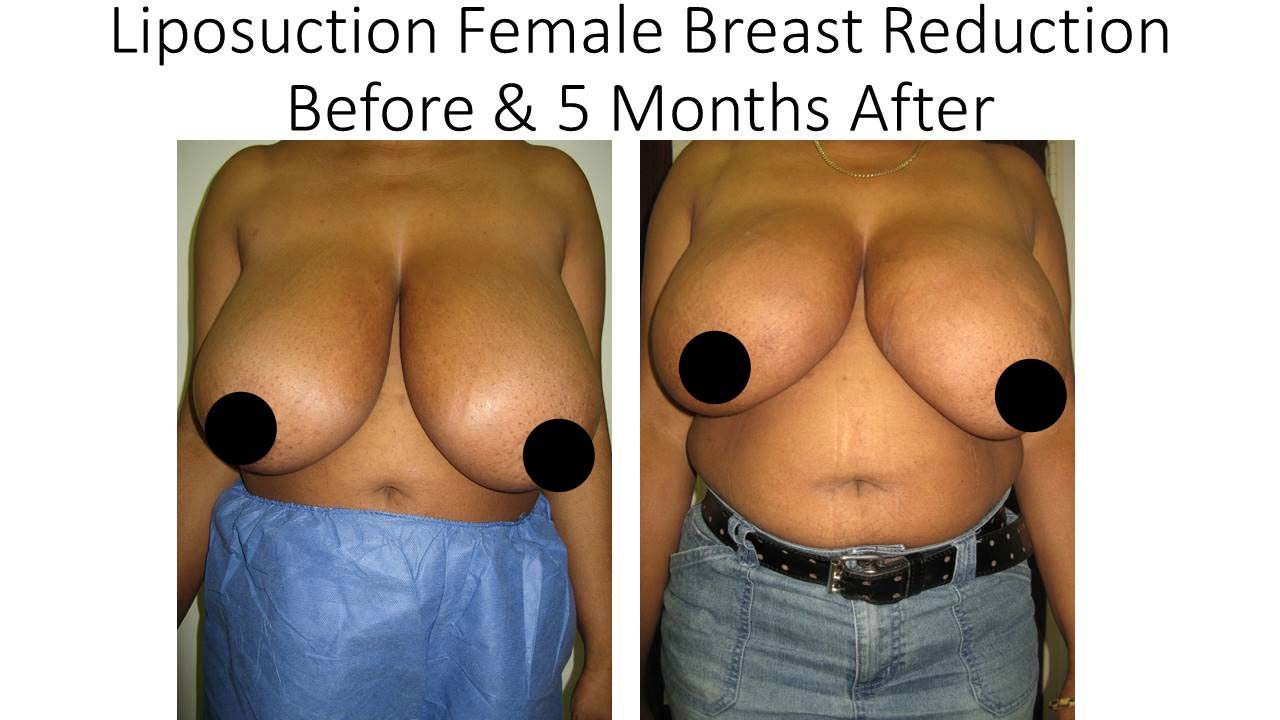 Liposuction Femae Breast Reduction