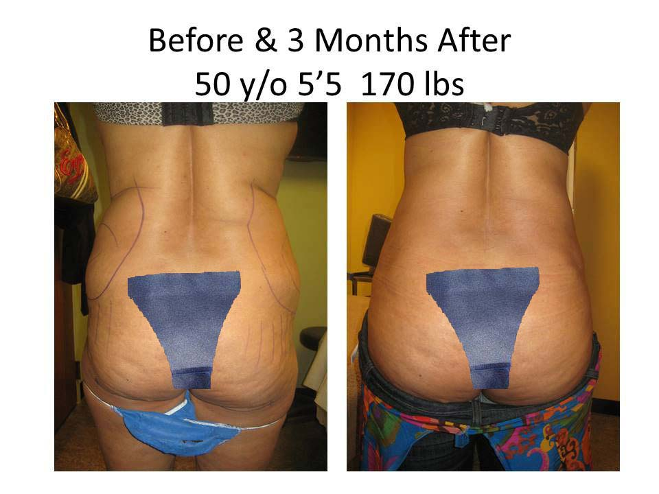Liposuction Fat Transfer 50Y/O