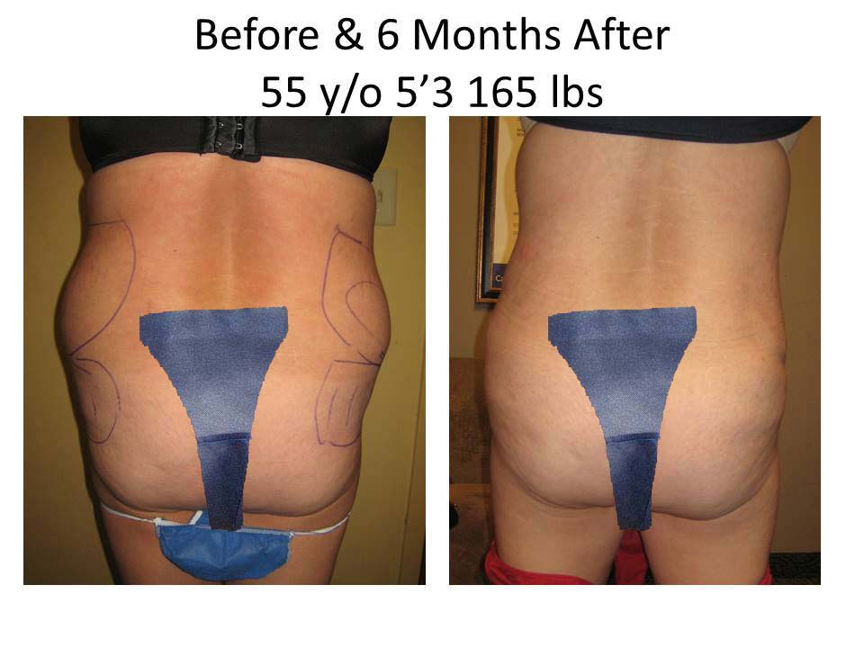 Liposuction Before and after 6 months of 55 y/o