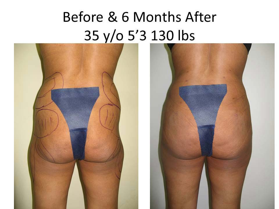 Brazilian Buttlift 35 Y/O 6 Months