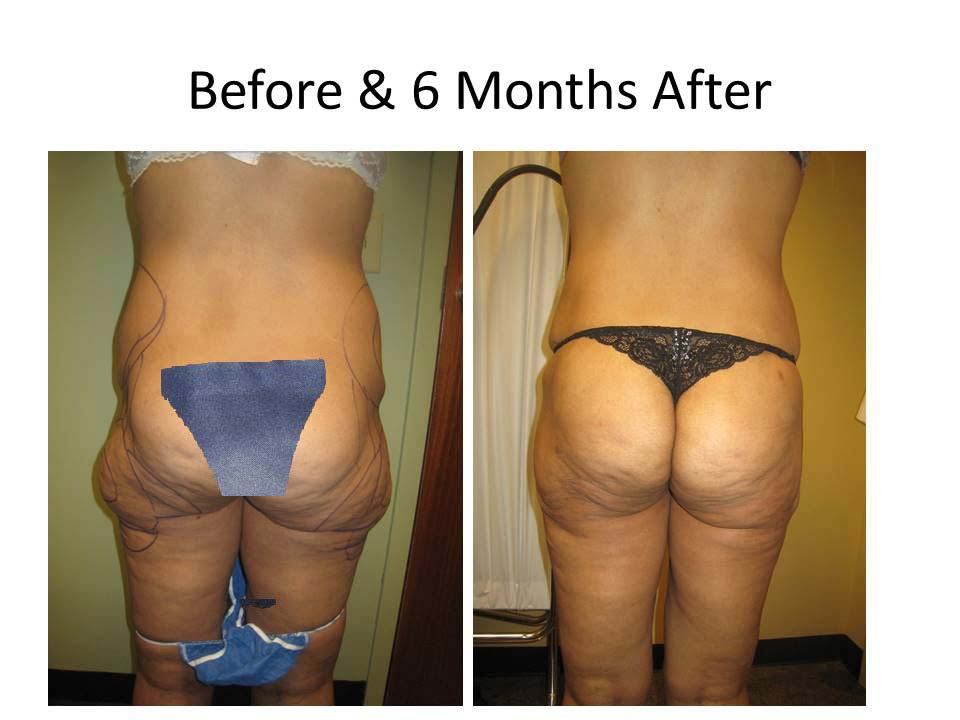 Brazilian Buttlift 6 Months