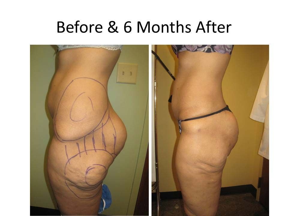 Brazilian Buttlift after 6 month result photo